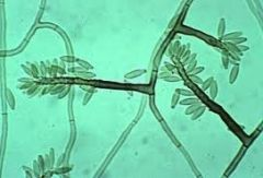 One of the three main types of sporulation of dematiaceous fungi that cause chromoblastomycosis. Has conidias going along the conidiophore