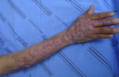 Lymphocutaneous spread up the arm