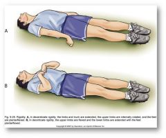 What are two abnormal postures noted with TBI patients?  ***