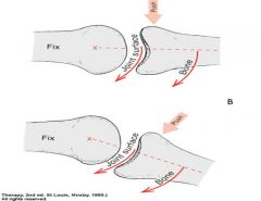 if surface of moving bone is concave, sliding is in the same direction of swing