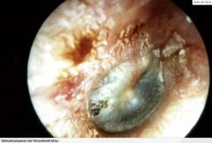 - Intaktes Trommelfell - Dunkelblau erscheinendes Trommelfell als Hinweis auf ein Hämatotympanum