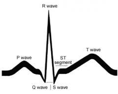 P wave - atrial depolarization