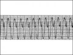 - 3 or move consecutive PVCs at a ventricular rate of >150 BPM