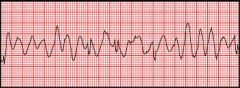 - Ventricles do not beat in a coordinated fashion, but fibrillate or quiver asynchronously and ineffectively