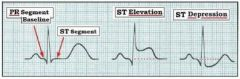 - Earliest sign of acute transmural infarction