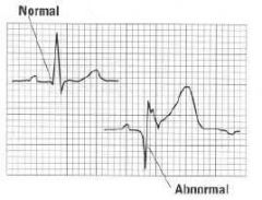 - A characteristic marker of infarction