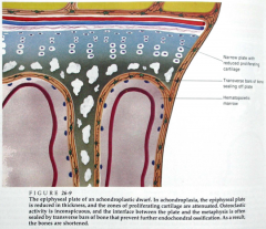 >Abnormal growth plates: the zones of chondrocyte proliferation and hypertrophy are narrowed and disorganised, with clusters of large chondrocytes rather than columns >At the base of the growth plate, there is premature deposition of bone that seals the