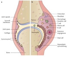 >Inflammation of synovium, vasculitis, oedema, inflitration by lymphocytes and macrophages, synovial proliferation and cartilage erosion.