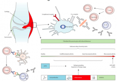 >Immune complexes >Autoantigens: citrullinated peptides/proteins e.g. fibrinogen (post translational modification of arginine to citrulline) and IgG itself act as autoantigens, the latter leading to the production of 'rheumatoid factor'  - IgG is a glyc