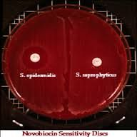 "paper disk impregnated with the scant amount of the antibiotic optichin. It is used to presumptively identify Strep pneumoniae which is sensitive to it, from other species of streptococci.   The organism to be tested is ""painted"" on a Blood agar p..."