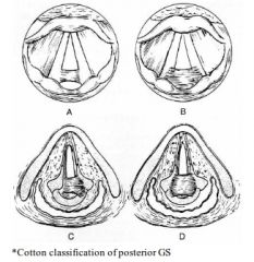 A: Type 1: Interarytenoid adhesion (with posterior sinus tract in Cotton classification) A: Type 2: Posterior commisure stenosis A: Type 3: Posterior commissure stenosis with unilateral cricoarytenoid ankylosis A: Type 4: Posterior commissure sten...