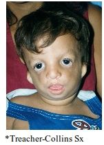 A: AD, 60% sporadic A: Mutation in TCOF1 gene, TREACLE protein, chromosome 5q A: Malformation of 1st & 2nd branchial arches A: Eye:  Antimongoloid palpebral fissures (downslanting) Coloboma of the lower eyelids (upper lid in Goldenhar) Aplasia of ...