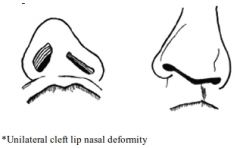 A: Nasal tip deflected to noncleft side with short medial crus and long lateral crus on cleft side A: Columella lies on noncleft side 2ndary to unopposed action of intact orbicularis oris A: Septum deflected to noncleft side A: Nasal dorsum to til...