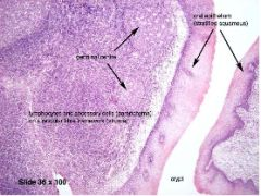 A: Specialized squamous epithelium (Dendritic cells) A: Extrafollicular area (T-cells) A: Mantle zone of lymphoid follicle (Mature B-lymphocytes) A: Germinal center of follicle (Active B-cells)