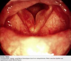 - Beidseitige Schwellung der Stimmlippen zwischen Epithel und Ligamentum vocale (Reinke Raum). - Fast ausschließlich Raucher betroffen (etwa 98%) - Mikrochirurgische Entfernung