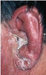 Infektion i öronbrosket, kan bli komplicerat då brosk inte regenererar, kräver remiss till ÖnH
