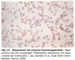 - Poikilozytose (Formvariabilität)   - Aniszytose (Grössenvariablilität)   - Hypochrome Erys