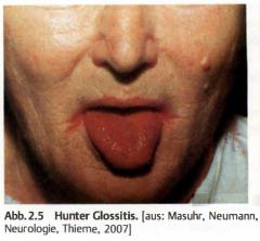 - Anämiesymptome   - GI Symptome   → Hunter-Glossitis (Zungenbrenne, verstrichene Furchen)   → Appetitlosigkeit, Diarhö   - Neurologische Symptome (Nur bei B12 Mangel)   → Demyelinisierung der Hinterstränge (spinale Ataxie, Gang...