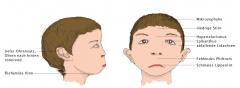 - Schmales Lippenrot - fehlendes Philtrum - niedrige Stirn - Hypertelorismus (vergrößerter Abstand zwischen den Augen), kurze Lidspalten, abfallende Lidachsen, Epikanthus (Sichelförmige Hautfalte am inneren Randwinkel des Auges, Mongolenfalte) ...