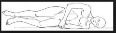 acostado de lado, cabeza  sobre almohada brazo inferior flexional a la altura del codo el brazo flexional y apoyado sobre el cuerpo