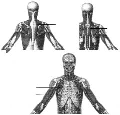 lower image's upper arrow