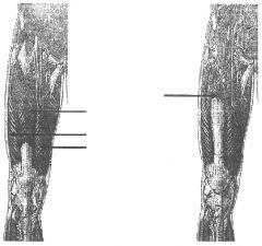 left image, 1st arrow