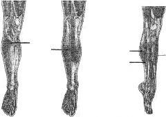 center image