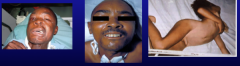 Clinical presentation Characterized by strong muscle spasms/spastic paralysis Trismus (lock jaw) first Characteristic grimace known as risus sardonicus Exaggerated reflexes Opisthotonos: pronounced arching of the back due to spasm of the strong ex...