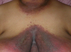 most commonly caused by Candida albicans  affects intertriginous areas (areas with folds like inguinal, genital, axillary, perineal, etc)  obese, diabetics, tight clothing, all predispose  eryhtematous plaques and erosions with satellite papules c...