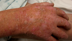 pre-malignant condition caused by excessive sunlight exposure   small, rough, erythematous, and keratotic papules that are often easier to feel than they are to see   leads to increased risk of squamous cell carcinoma   individual lesions can be r...
