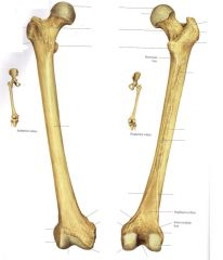 What bone is this?