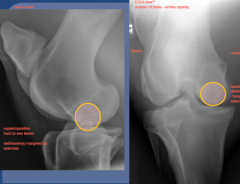 Lateral view                  CrCd view  medial femoral condyle  radiolucency marginated by sclerosis  radiolucency defect to articular margin with sclerosis