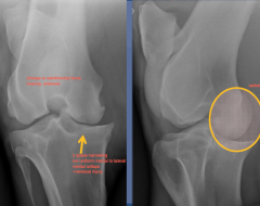 CdLCrMO  change to subchondral bone, lucency, sclerosis  jt space narrowing, not unifrom medial to lateral -meniscal injury, medial collaps  radiolucency medial condyle