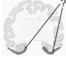 Heres an illustration of coronal section of a monkey brain cut through the hippocampus and amygdala. The shaded area indicates the position of the...