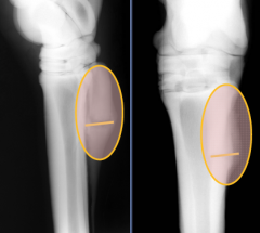 Chronic MT IV fracture