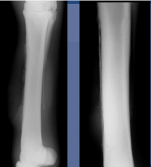 2 wks later
