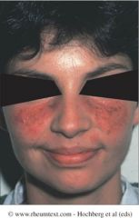 What type of rash is seen here (chronic/acute/subacute)? How can you tell the difference between this and rosacea