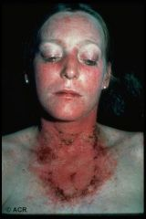 What is shown in this person with lupus?