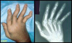 What is shown in this image? Can you tell Lupus related arthropathy or Rheumatoid Arthritis and how?