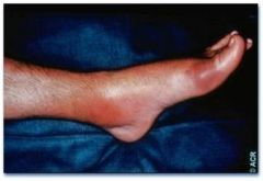 What is this an example of? What are other sites of gout?  Why does having Psoriasis predispose you to gout?