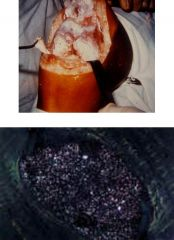 What type of crystal disease is shown here? How can you tell?