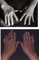 A person comes in to you with painful gouty symptoms in her hands and CPPD deposition in the 2nd and 3rd MCP. What is this disease?