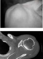 This is a destructive arthritis that causes hemorrhagic shoulder effusions. What might it be and what crystal arthropathy is it associated with?