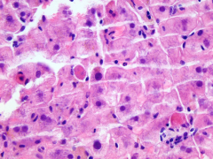 What are the eosinophilic cells in this image called? What