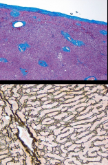 T or F Collagen Type IV is found in liver sinusoidal cells.   What stain is shown on the bottom image?