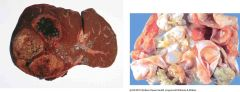 What is the causative agent of the abscess that you see in either image?