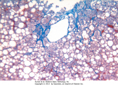 What is this type of fibrosis (associated with alcoholic hepatitis) called?