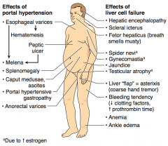 "- Hepatic encephalopathy - Scleral icterus - Fetor hepaticus (breath smells musty) - Spider nevi (d/t ↑ Estrogen) - Gynecomastia (d/t ↑ Estrogen) - Jaundice - Testicular atrophy (d/t ↑ Estrogen) - Liver ""flap"" = asterixis (coarse hand..."