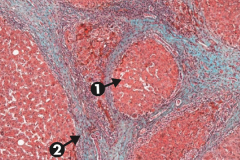 Cirrhosis, microscopic: typical regenerative nodules (arrow 1) and bridging fibrosis (arrow 2)