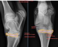 Tarsal Bone Collapse